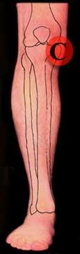 Knee Pain Right Leg Front Inside