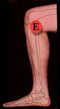 Knee Treatment Inside Right Leg